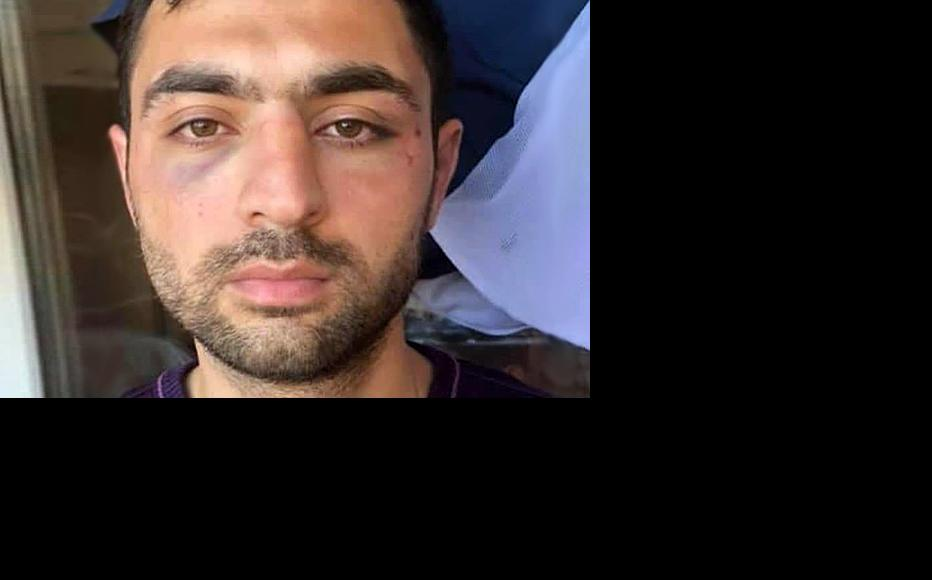 Karim Suleymanli, who was beaten and detained by the police. (Photo courtesy of K. Suleymanli)
